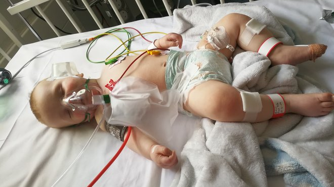 Caleb meningitis case study