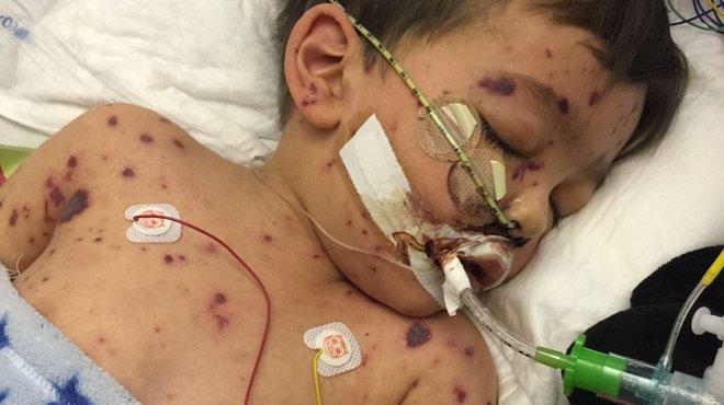 Charlie Y meningococcal bacterial meningitis case study