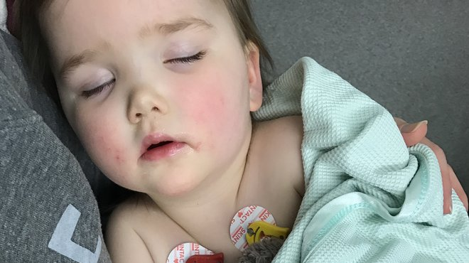 Connie bacterial pneumococcal meningitis story
