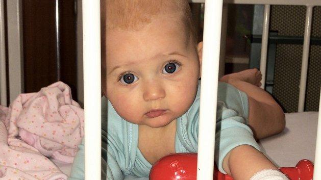 Emilia S viral meningitis case study