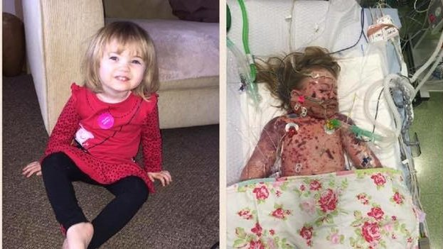 Meningitis victim Faye Burdette