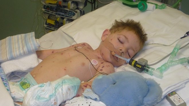 Harry J MenB bacterial meningitis case study