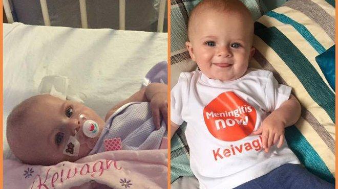 Keivagh bacterial meningitis case study