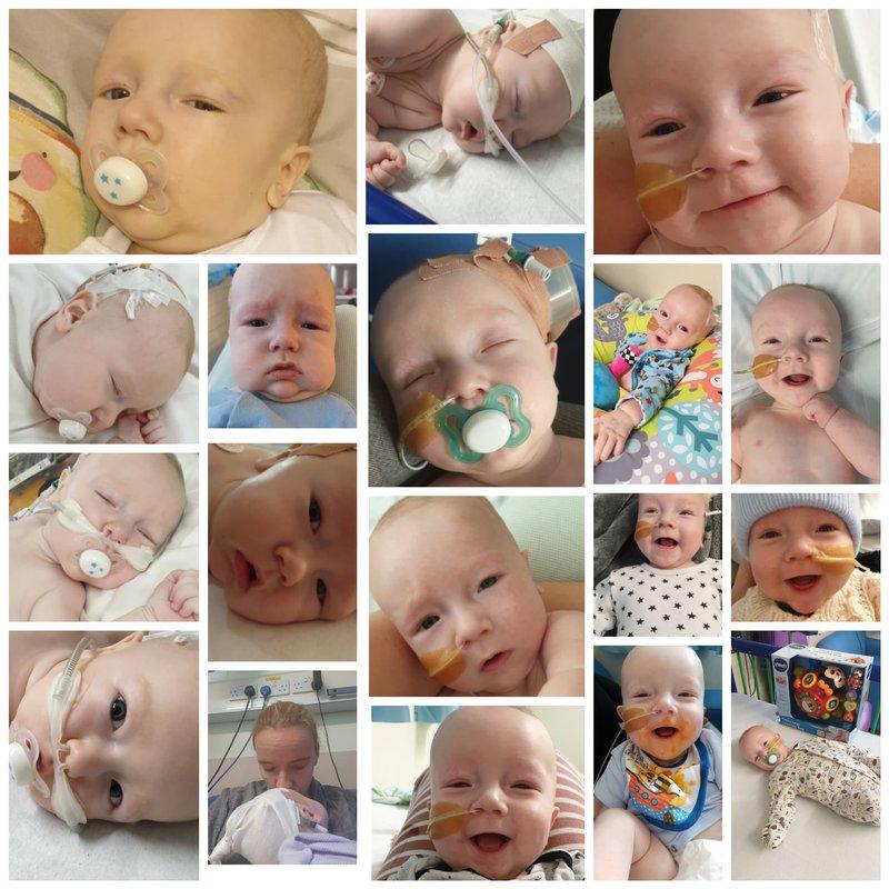 Leon B meningococcal bacterial meningitis story