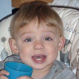 Mattia meningococcal bacterial meningitis case study