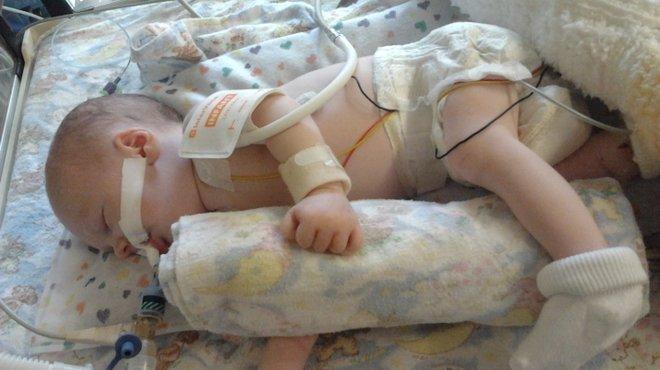 Noah bacterial meningitis case study