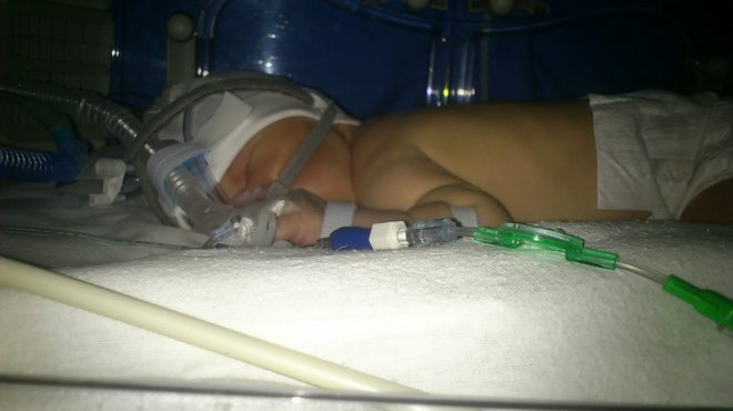Oscar and Kate bacterial meningitis case study