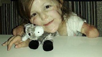Ellie Mae meningococcal bacterial meningitis case study