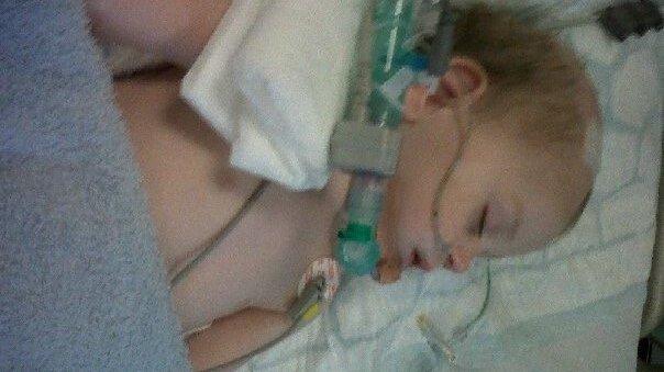 Riley G TB bacterial meningitis case study