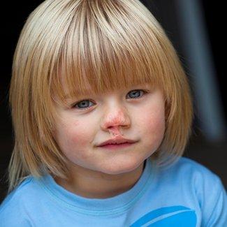 Meningitis amputee Riley Dingle