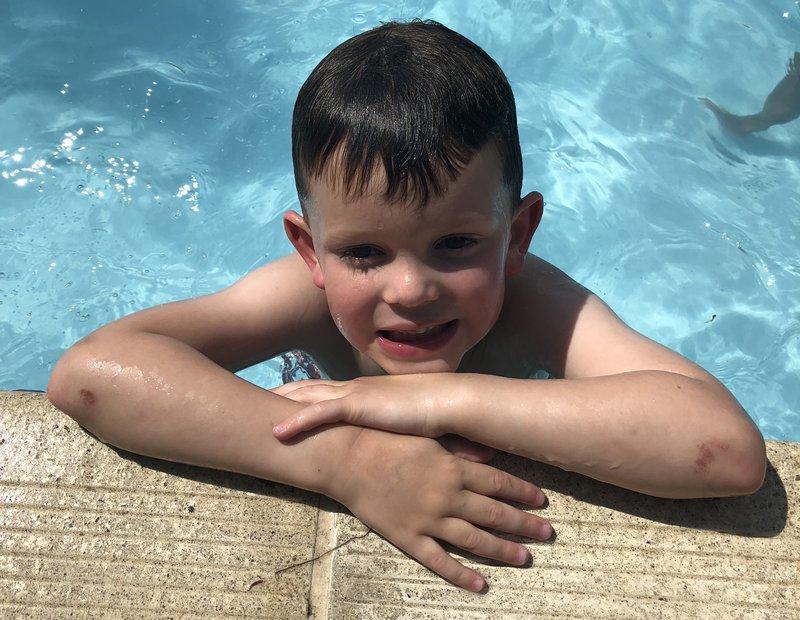 Callum Gillespie meningitis after-effects deafness