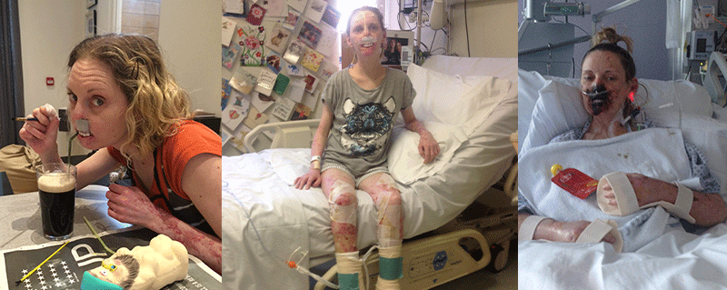 Tammy's bacterial meningitis case study