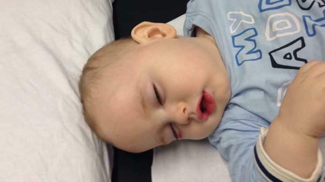 Thain bacterial viral meningitis case study