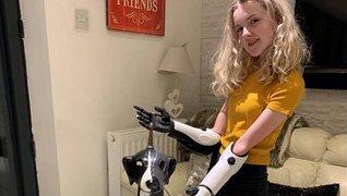 Meningitis amputee Tilly's bionic Haslemere Hound blog