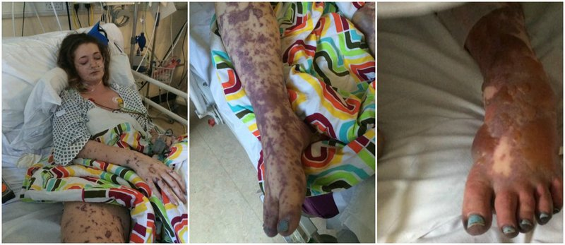 charlene graphic meningitis photo collage