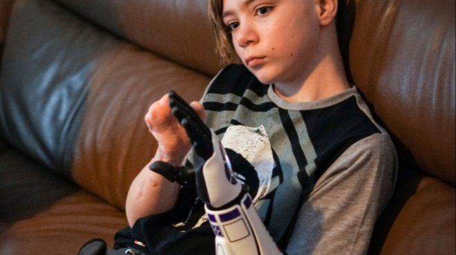 Kye's new bionic arms