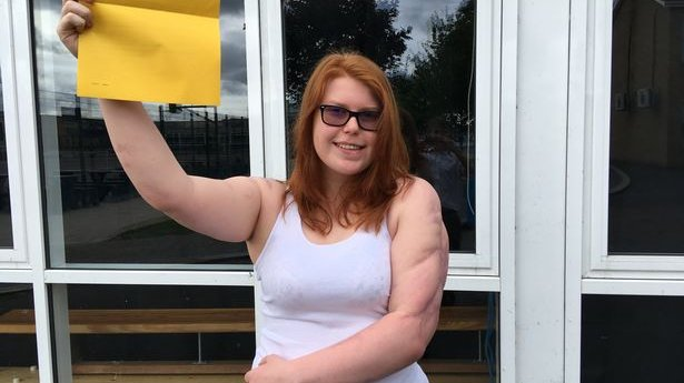 GCSE success for student Levana after meningitis