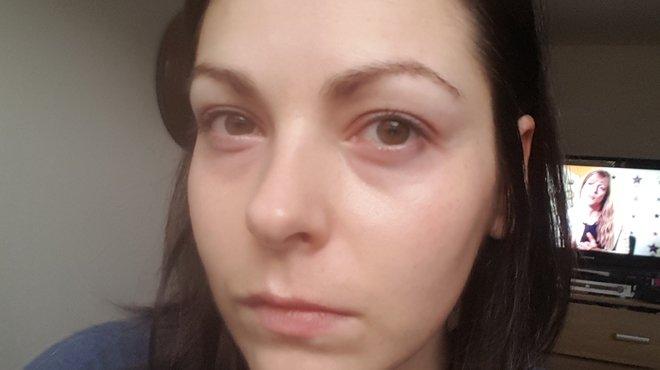Rebecca H bacterial meningitis case study