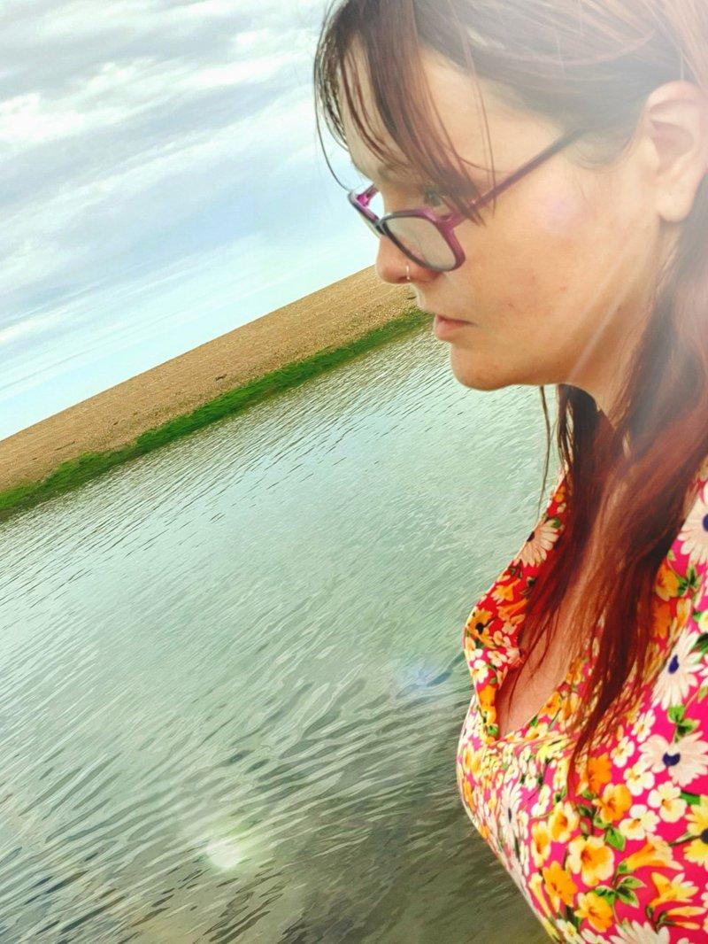 Nikki D viral meningitis case study